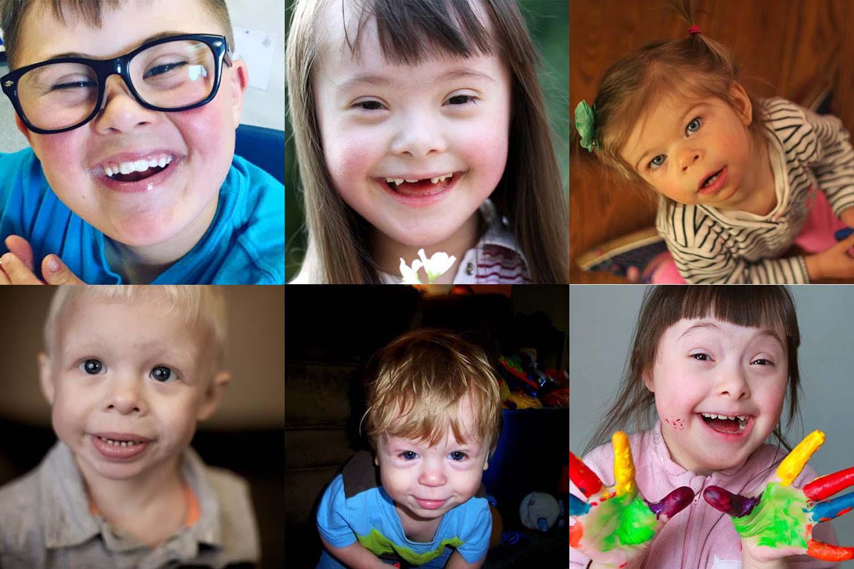 williams-syndrome-man-all-smile